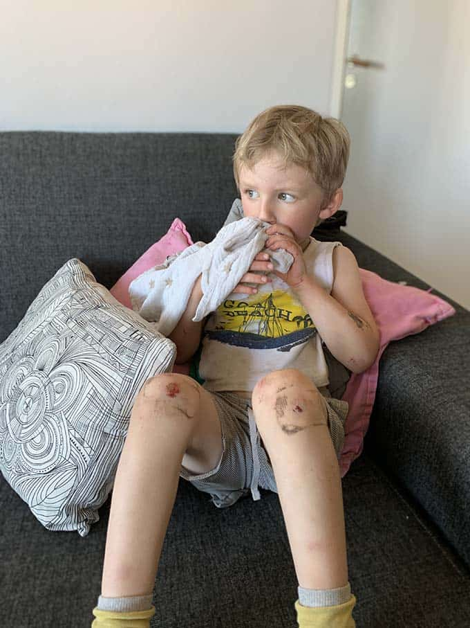 a boy on a grey sofa with scraped up knees