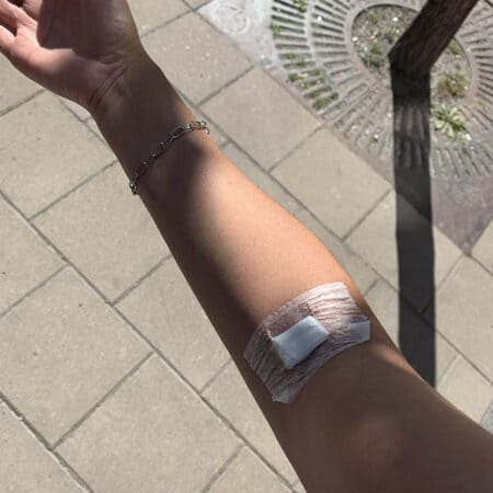 a woman's arm with a bandage from having a blood test